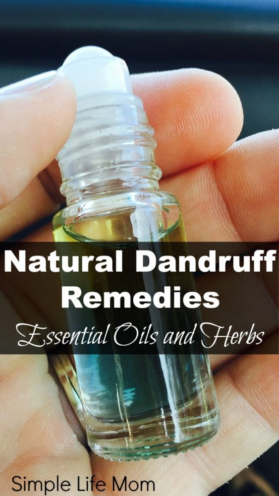 Natural dandruff remedy simple life mom for Simple living mom