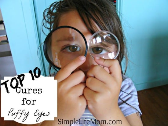 Top 10 Cures for puffy eyes- Possible causes, Do's and Don'ts, and top 10 methods to cure puffy eyes