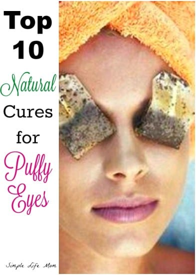 Top 10 Cures for Puffy Eyes | Simple Life Mom