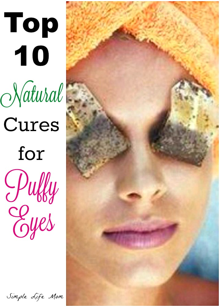 Top 10 Cures for Puffy Eyes -Simple Life Mom