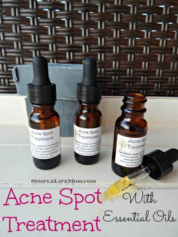 Acne Spot Treatment Using Essential Oils