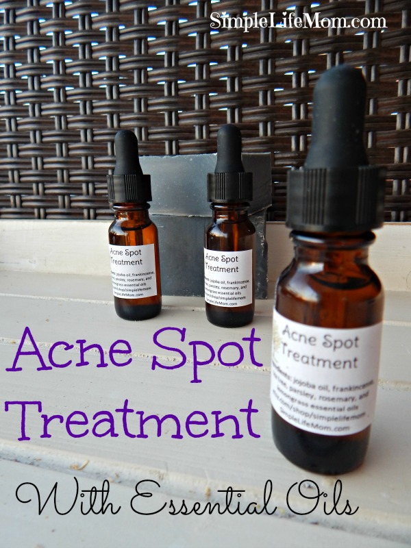 Acne Spot Treatment with Essential Oils by Simple Life Mom. Oils to cleanse, heal, and reduce inflammation.