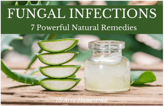 Homestead Blog Hop Feature - Fungal Infections 7 Powerful Remedies